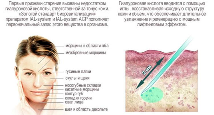 Биоревитализация