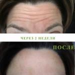 Фото до и после - релатокс